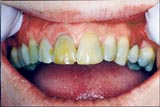 Before and After CEREC