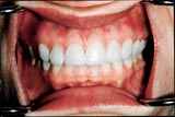No Gapes after CEREC