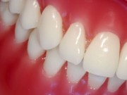 Picture of periodontal disease before treatment.