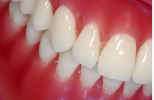 Picture of healthy gums and teeth to demonstrate the difference between bleeding gums and healthy gums.